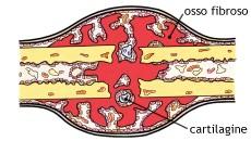 osso 3