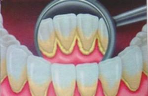 tartaro dentale