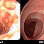 Un frullato per eliminare feci, tossine e residui tossici dal colon